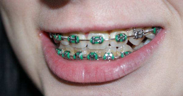 ブラケットによる歯列矯正