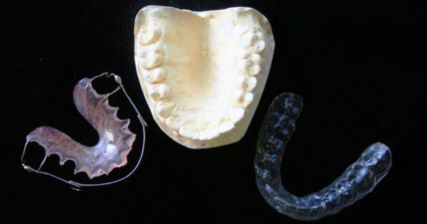 矯正した歯を戻らないように固定させるリテーナー
